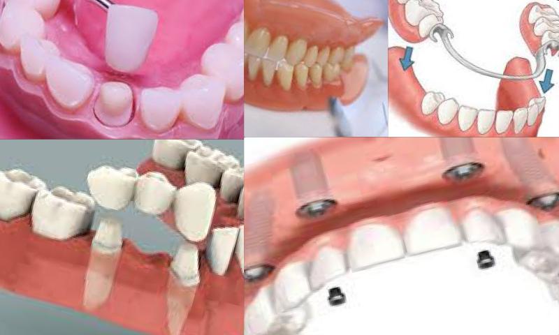 Protetik Diş Tedavisi Nedir? Nasıl Uygulanır?